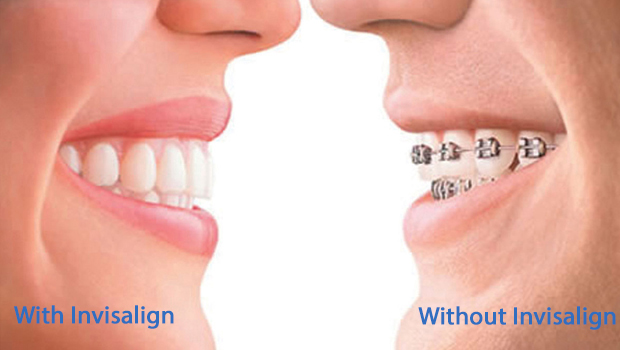 invisalign in Franklin